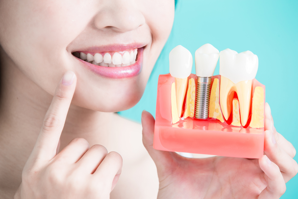 Dental Implant In Pune Implantologist In Kothrud Pune Dr
